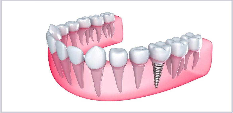 Banner - Customised Emulate Implants