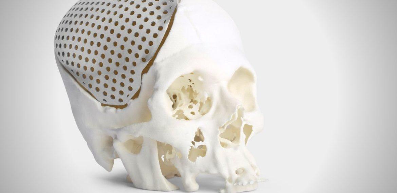 Customized Orthopaedic : Maxillofacial Implant